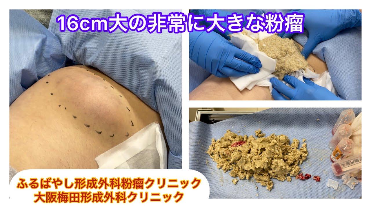 大腿部の非常に大きな粉瘤 ブログでも粉瘤について詳しく解説してます。ふるばやし形成外科粉瘤クリニック東京新宿院 大阪梅田形成外科クリニック